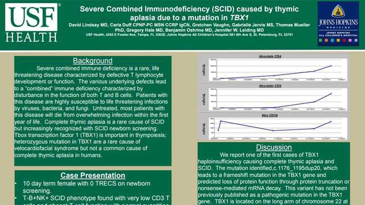 Severe Combined Immunodeficiency (SCID) caused by thymic aplasia due to a mutation in TBX1