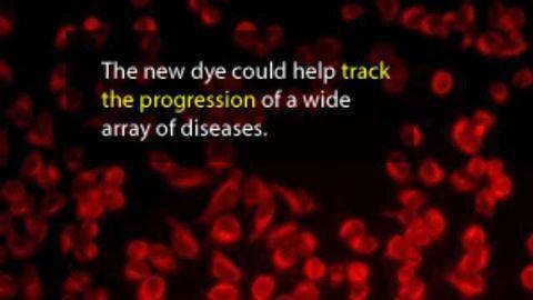 Newly Developed Dye, Washington Red, Could Advance Bioimaging
