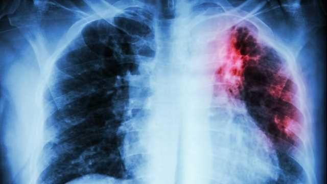 Cancer Gene Plays Key Role in Cystic Fibrosis Lung Infections