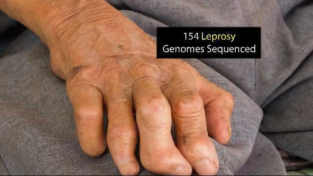 Sequencing of Leprosy Genome Could Provide Vital Answers to Drug Resistance Mechanisms