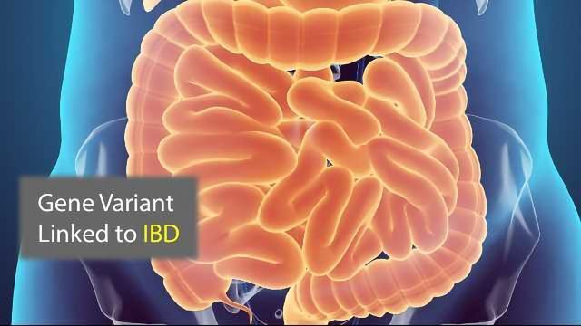 Protein Recycling Plant Malfunctions in Inflammatory Bowel Disease