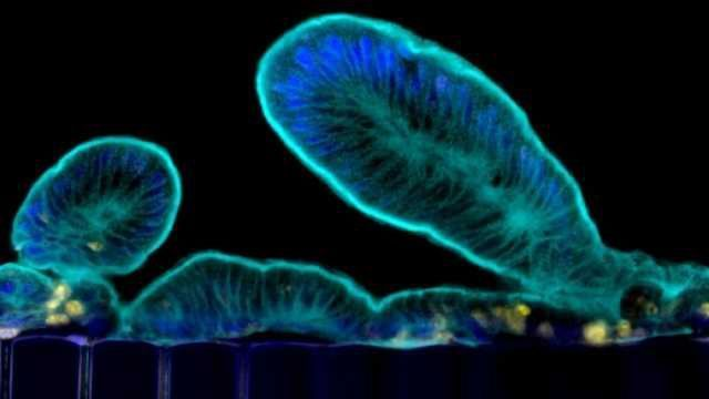 From Human Biopsy to Complex Gut Physiology on a Chip