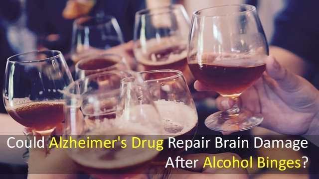 Could Alzheimer's Drug Repair Brain Damage After Alcohol Binges?