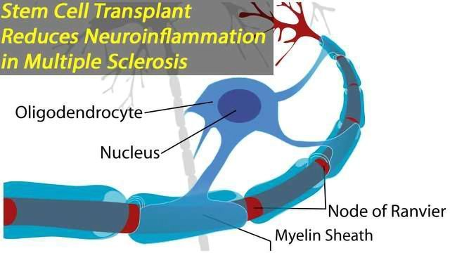 Transplanting Stem CellsDirectly into the Cerebrospinal Fluid Reduces the Amount of Succinate, Reprograms Macrophages and Microglia