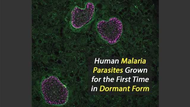 Human Malaria Parasites Grown for the First Time in Dormant Form