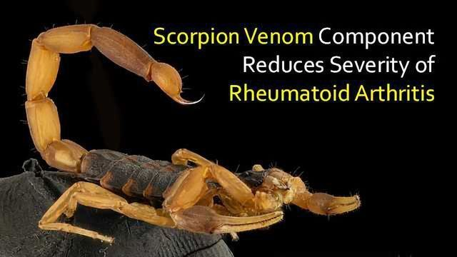 Component Found in Scorpion Venom Reduces Rheumatoid Arthritis Severity