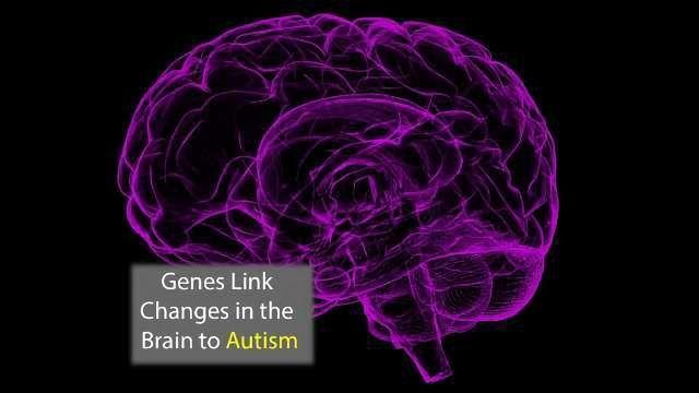 Genes Linked to Brain Anatomy in Autism Identified