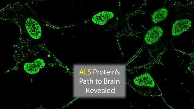 ALS Protein's Path into the Brain Documented