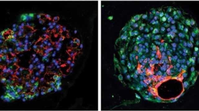 New-found Stem Cell Helps Regenerate Lung Tissue after Acute Injury