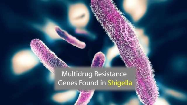 Multidrug Resistance Gene Detected in Shigella Isolates
