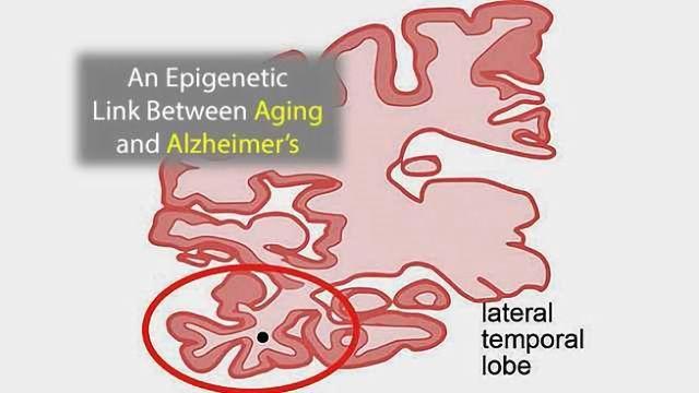 An Epigenetic Link Between Aging and Alzheimer's