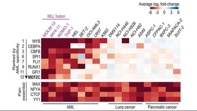 CRISPR-Based System Identifies New Drug Targets in Aggressive Leukemia