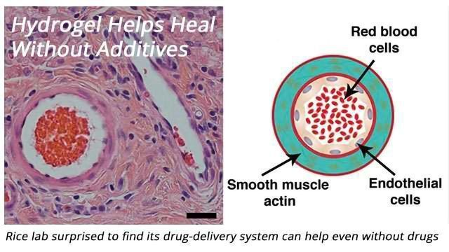 Drug-Delivery System Can Help Heal Even Without Drugs