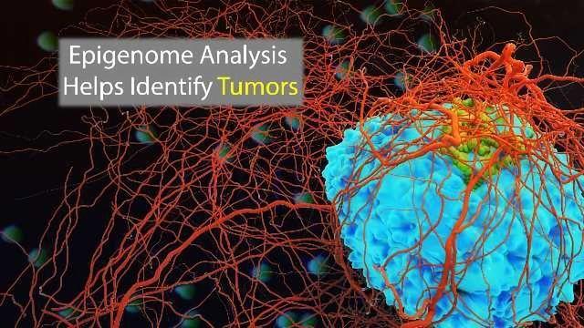 Epigenomics to Enhance Tumor Classification