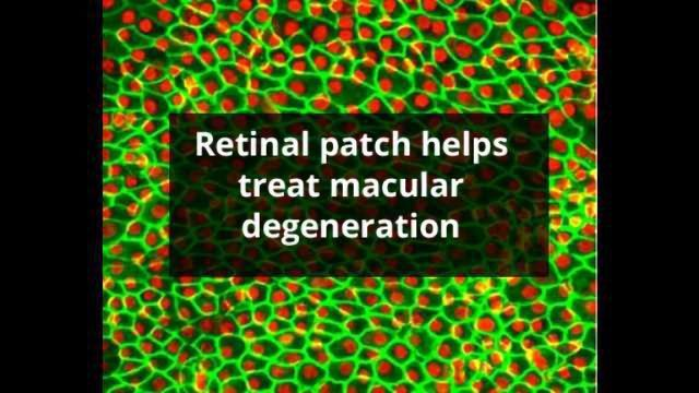 Stem Cells Treat Macular Degeneration