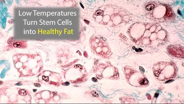 Low Temperatures Turn Stem Cells into Calorie-Burning Fat
