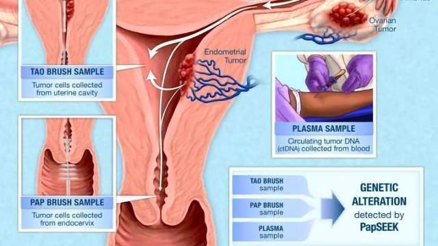 Pap Test Fluids Used to Test for Endometrial & Ovarian