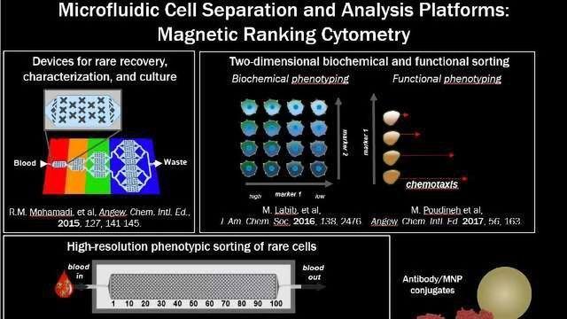 Liquid Biopsy Technology for Prostate Cancer Developed