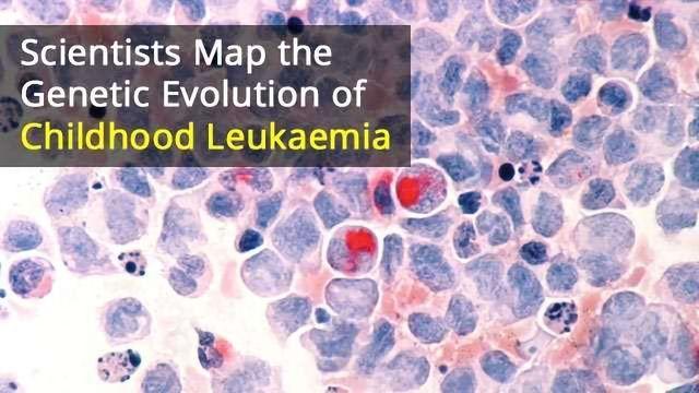 Mutation May Trigger Development of Childhood Leukaemia