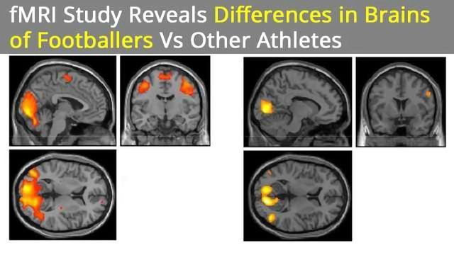 Brain Differences Found in Athletes Playing Contact vs Noncontact Sports