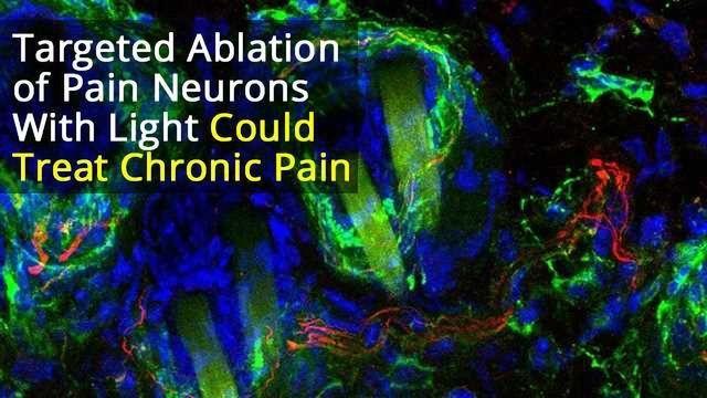Photoablation of Sensory Neurons to Manage Chronic Pain