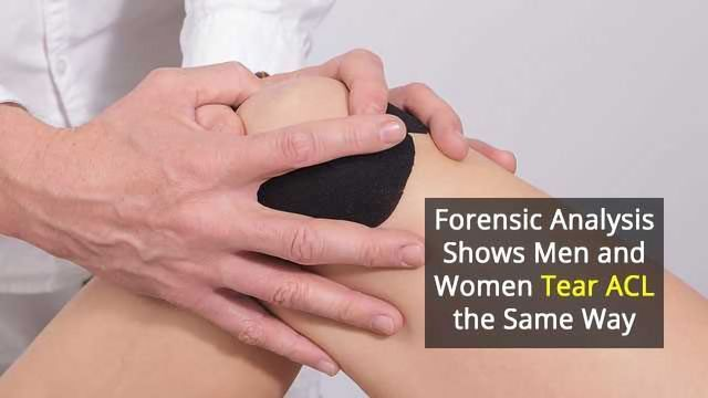 Forensic Analysis Sheds Light on Ligament Injuries