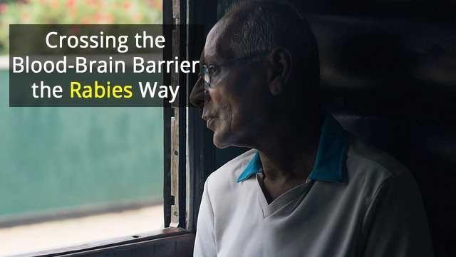 Rabies Trick Could Help Treat Parkinson's Disease