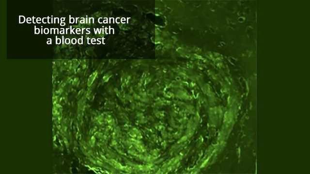 Noninvasive Brain Tumor Biopsy on the Horizon