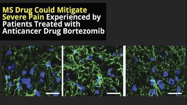 MS Drug Could Reduce Painful Adverse Effects of Cancer Treatment
