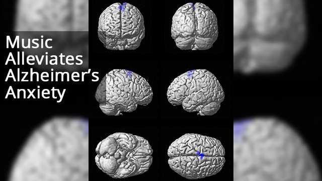 Music Activation of Salience Network Could Alleviate Anxiety in Alzheimer's Disease