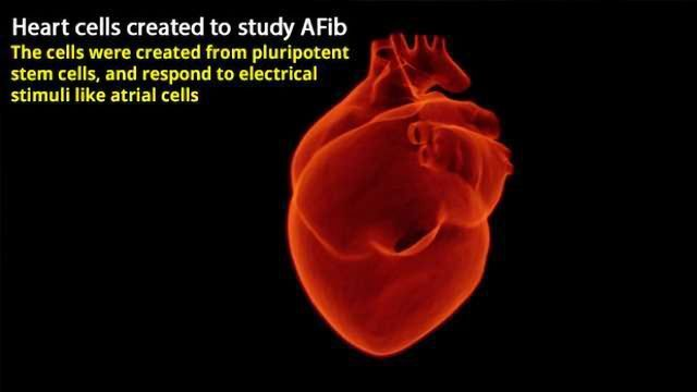 Atrial Cells Created from Stem Cells