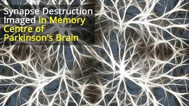 Paradoxical Changes in Hippocampal Neurons Underlies Parkinson's, Dementia