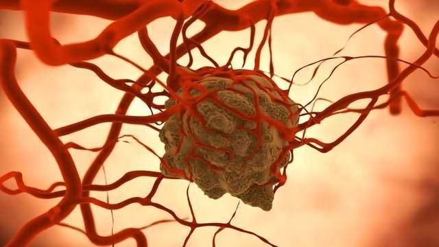 Tumor-extrinsic Immune Evasion in the Tumor Microenvironment