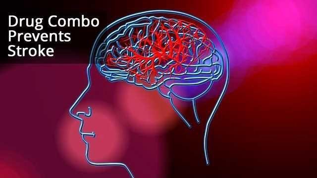 Drug Combo Prevents Stroke, Shows Promise for Clinic