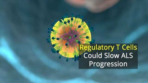 Immune Cells Hold Promise In Slowing ALS