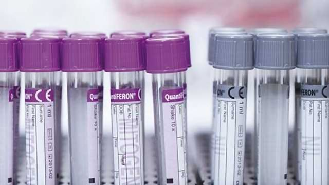 QIAGEN welcomes WHO's Essential Diagnostics List which includes QuantiFERON-TB Gold