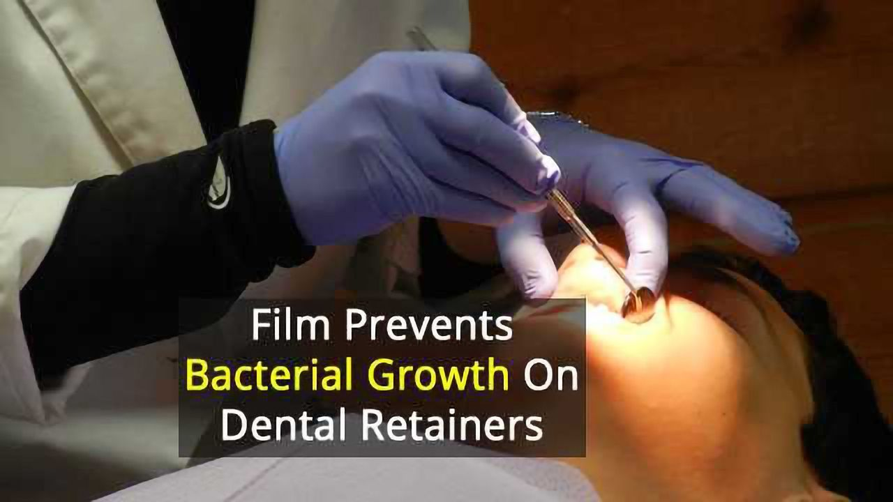 Helping Dental Aligners Fight Off Bacteria