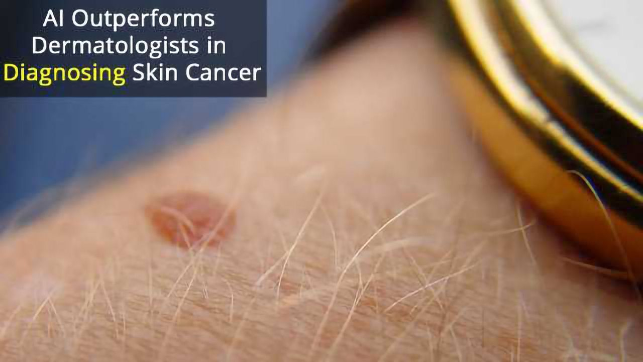 Computer Beats Experts in Diagnosing Skin Cancer