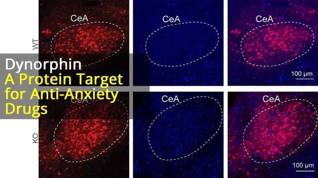 Neuropeptide of Stress: Dynorphin drives anxiety