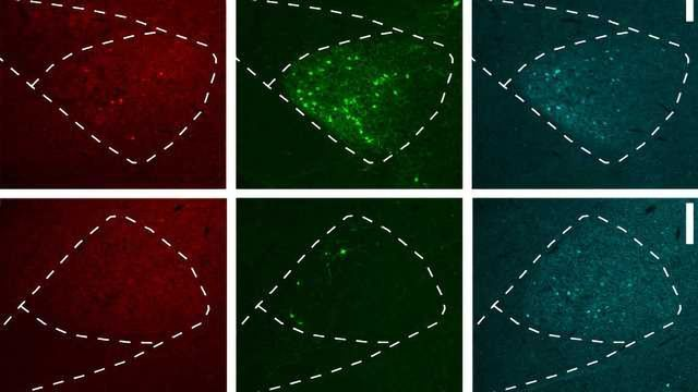 Overcoming Tropism in Retrograde Brain Cell Circuit Tracing