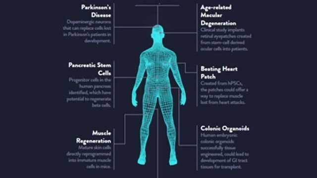 Stem Cells in Regenerative Medicine