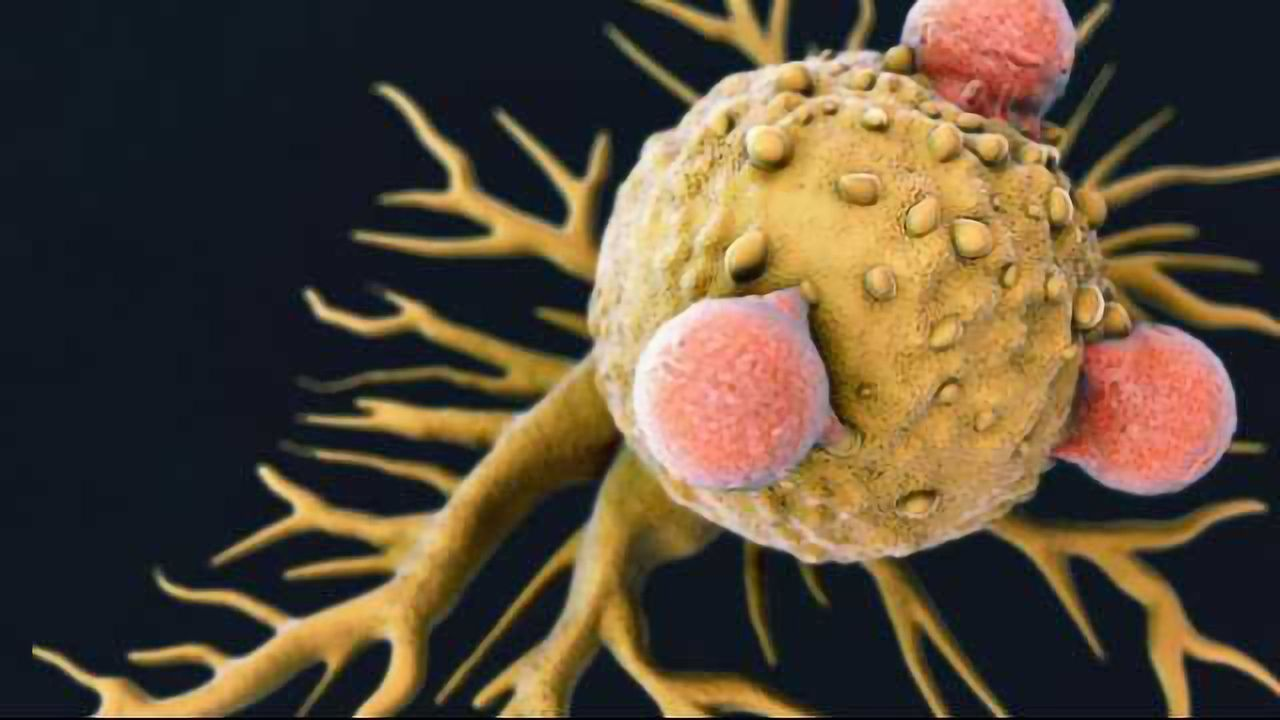 The Role of Wnt Signaling in Cancer