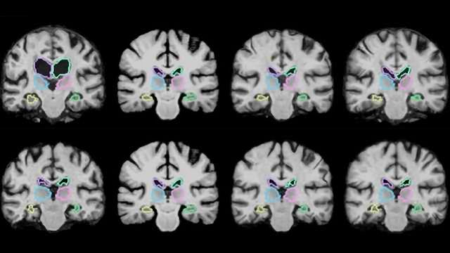 Algorithm Enables Real-time Brain Scan Registering
