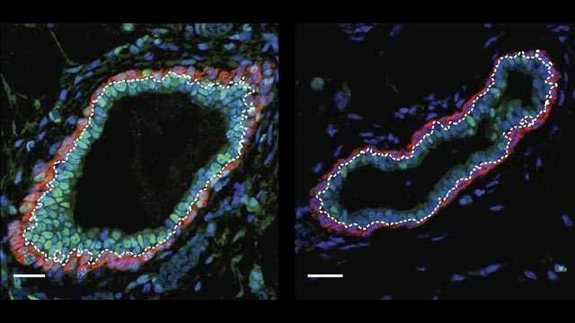 Targeting Epigenetic Proteins to Prevent Breast Cancer