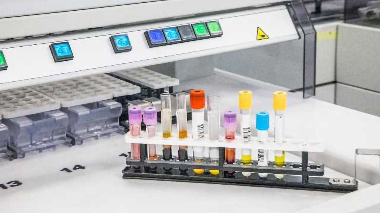 Metabolomics: The Long Journey from Lab to Clinic