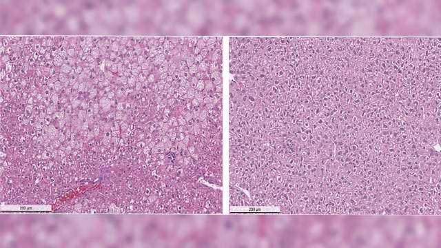 Promising Preclinical Results for Compound to Treat Wilson's Disease