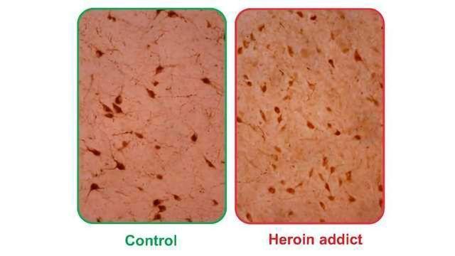 Wakefulness Molecule Orexin/Hypocretin Abundant in Brains of Heroin Addicts