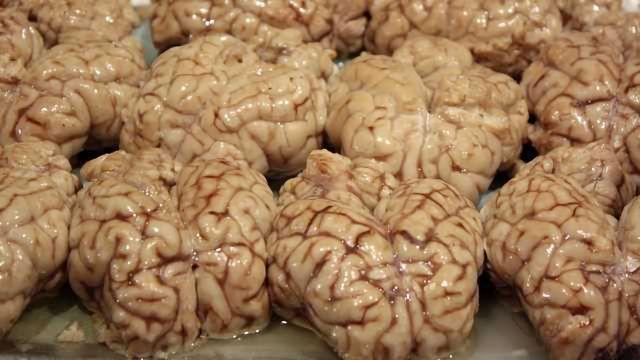 Experimental Drug Stops Parkinson's Disease Progression in Mice