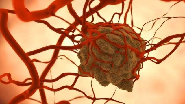American Cancer Society Outlines New Blueprint for Cancer Control