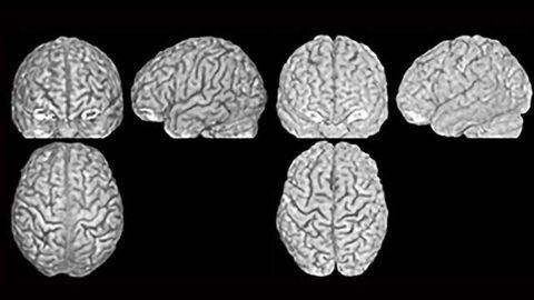 Brain Structure as Unique as a Fingerprint